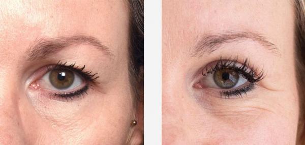 ooglidcorrectie voor en na foto